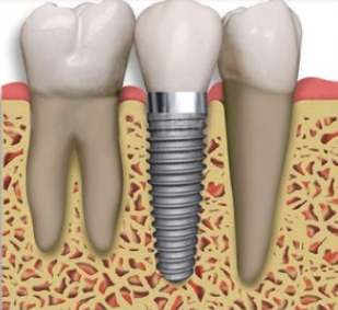 What types of dental grants can you get?