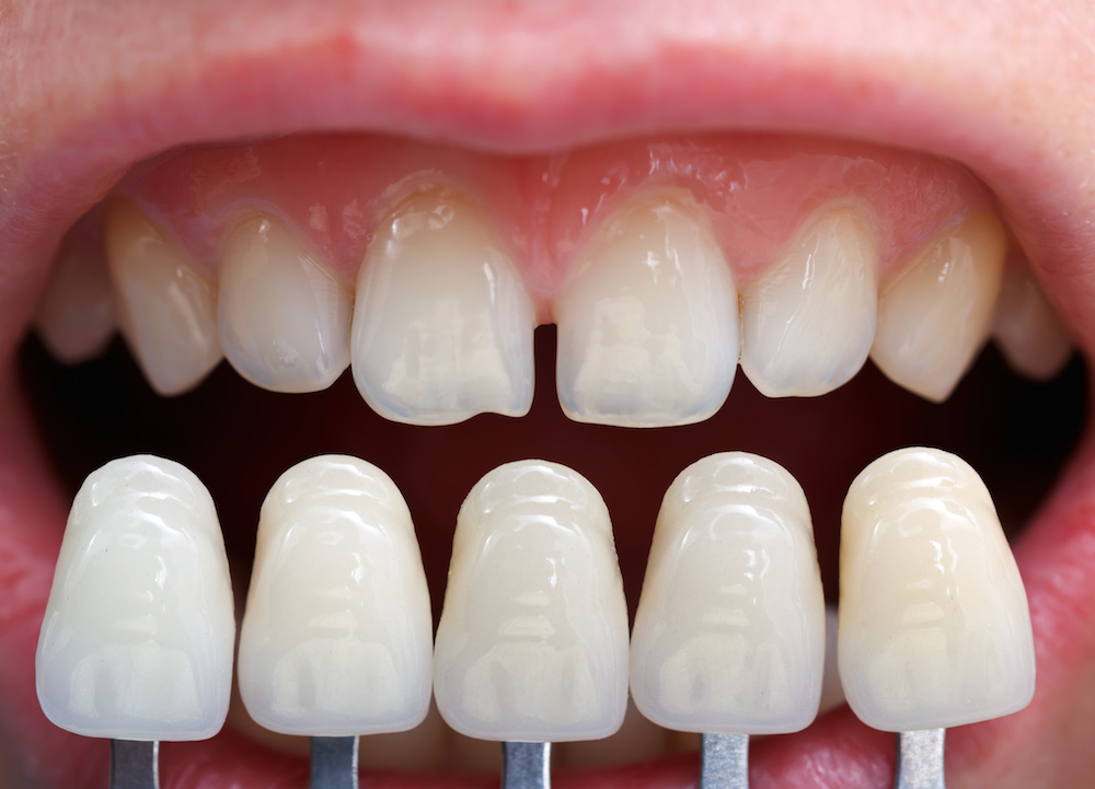 dental veneers costs