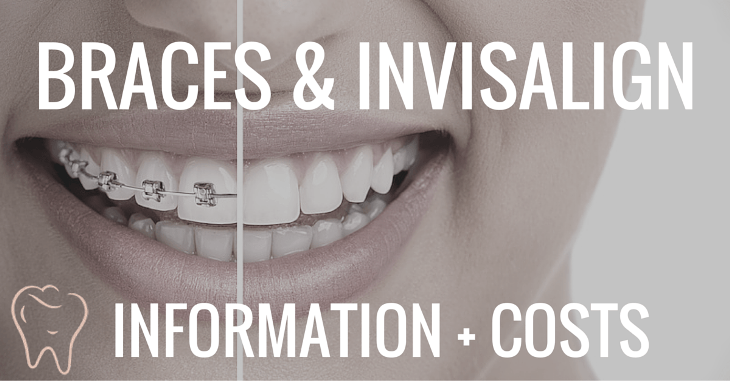 braces and invisalign costs and information