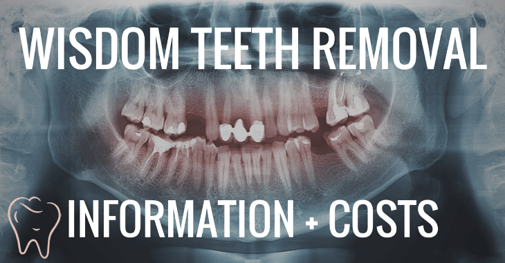 wisdom teeth removal costs and information