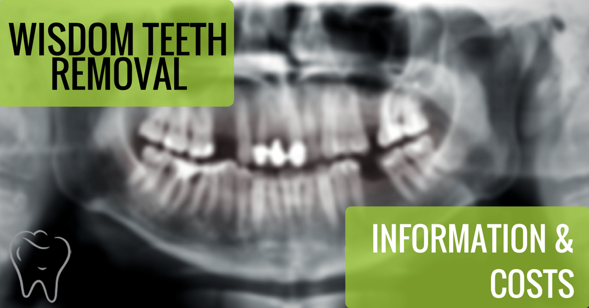 wisdom teeth removal costs and information - Dental Guide ...