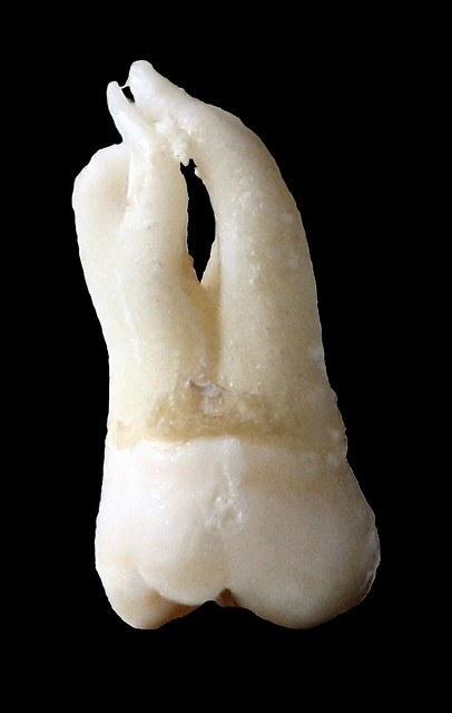 Wisdom teeth removed