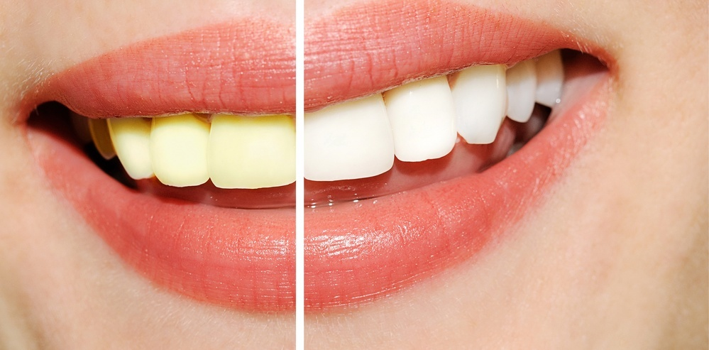 teeth whitening results before and after