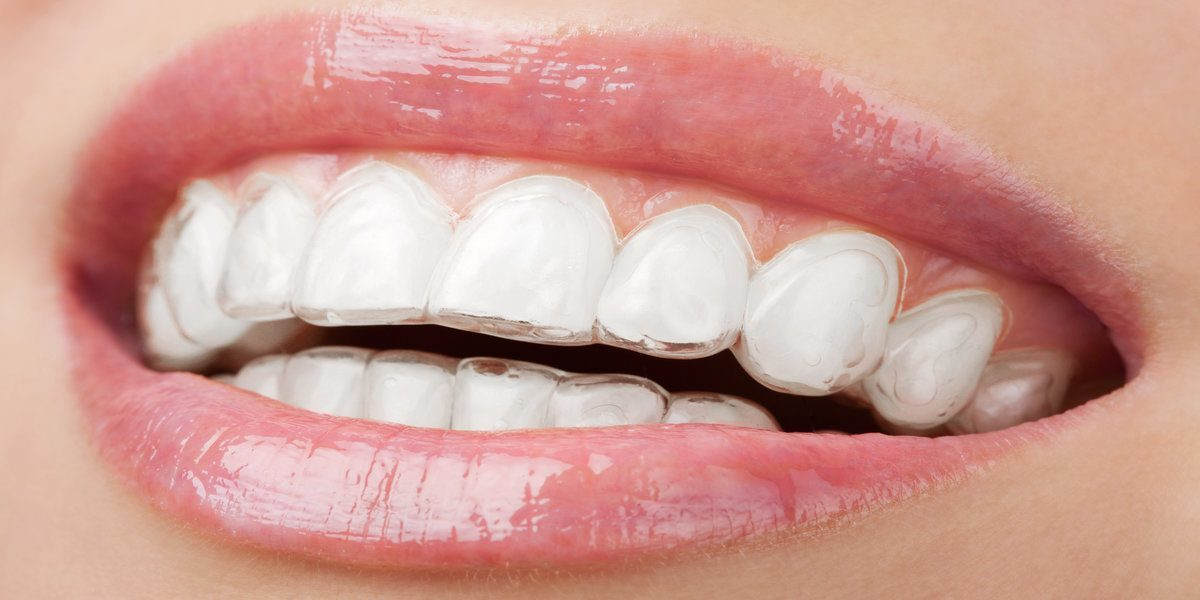 Teeth whitening strip reviews Australia