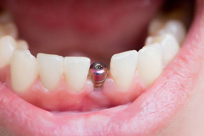 How is a Bone Graft Done for Dental Implants? - Dental ...
