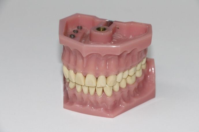 a denture repair in process