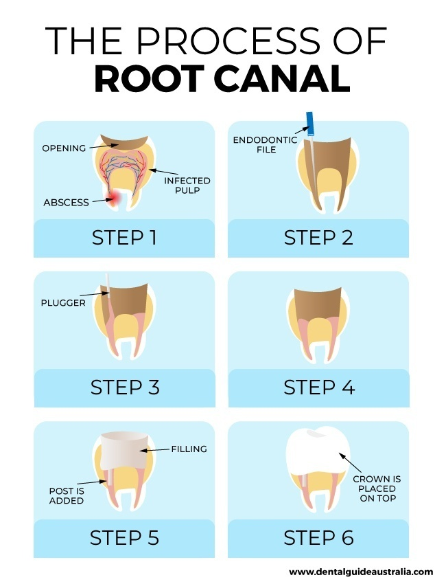 Process of a dental procedure