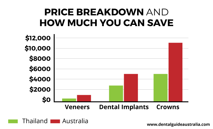 Comparing prices of dental work