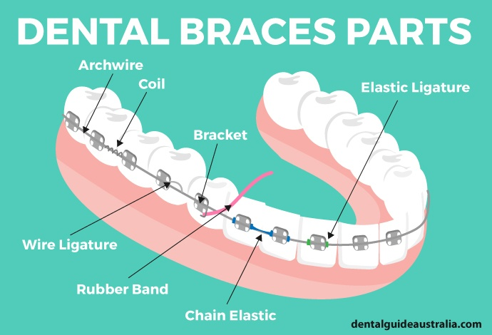 Diagram of teeth wearing braces with labels.