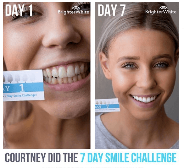 Lady smiling with white smile before and after.